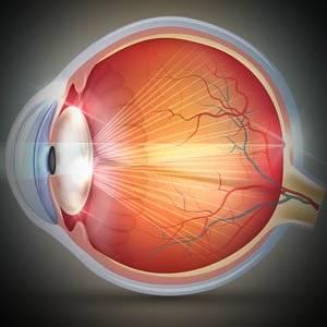 Cataracts,  Read +
